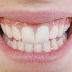 Lächeln trotz Zahnschmerzen mit Bonität